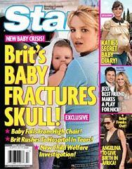 Brit's Baby Fractures Skull!